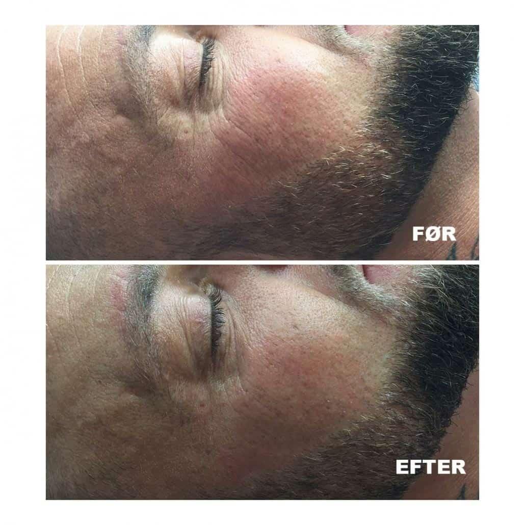 før og efter hifu