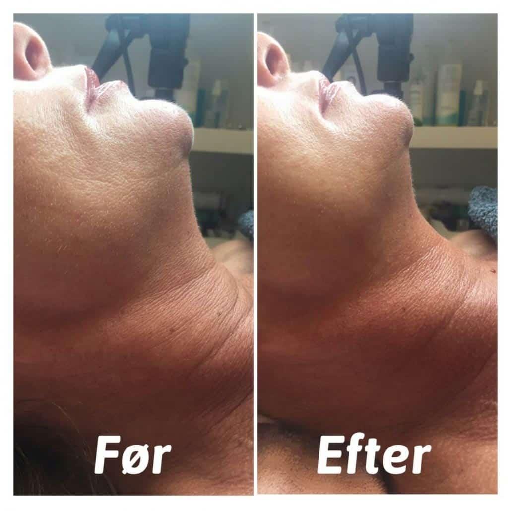 før/efter hifu behandling